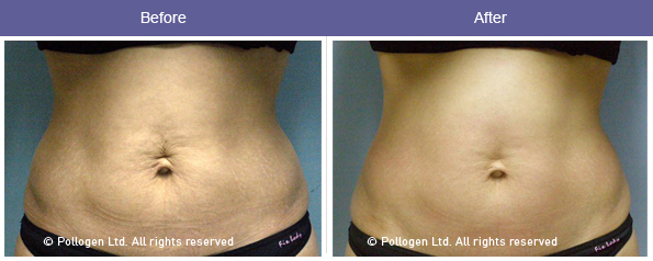 Tripolar RF and Mesotherapy