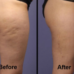 Mesotherapy and Tripolar RF for Cellulite Reduction