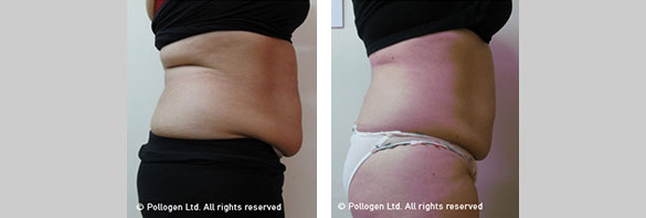 Body sculpting with RF and Mesotherapy at W8MD